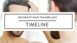neograft recovery timeline neograft hair transplant timeline the toronto hair transplant