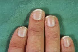 ridges in my fingernails awesome nail
