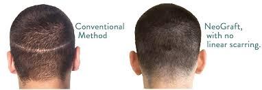 neograft recovery timeline neograft hair restoration minneapolis edina mn