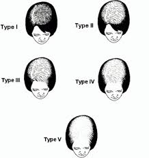 thinning hair in women on top of head hair transplants for women womens hair restoration