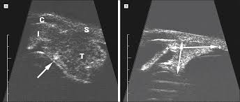 high frequency ultrasound characteristics of 24 iris and