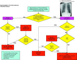 management of spontaneous pneumothorax british thoracic society