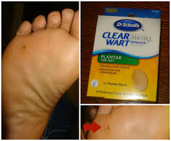 planters wart on foot foot callus plantar wart surgery removal 8 month update youtube
