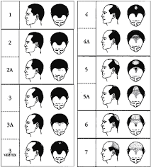 different types of receding hairlines is a hair transplant right for you
