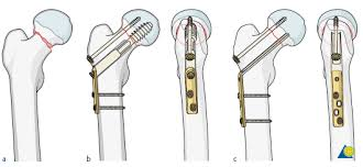 proximal femur decision support ao surgery reference