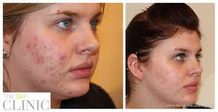 blu light therapy for acne lustre pure light blue light therapy shows significant improvement