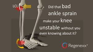 lcl si e ankle sprain knee the ankle bone s connected to the knee bone