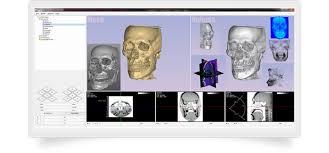 Skull Viewer Volume Viewer And Skull Bone Simulator Real3d Pk