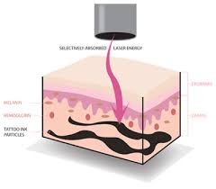 how does laser tattoo removal work skin medical