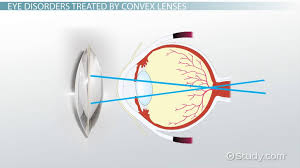 What Is A Reflex Action Example Lens Of The Eye Definition U0026 Function Video U0026 Lesson Transcript