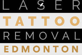 laser tattoo removal edmonton get yours removed today