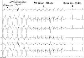 acute and 3 month performance of a communicating leadless