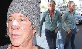 Mickey Rourke News Newslocker - mickey rourke sports plaster on his nose as he exposes his pecs for