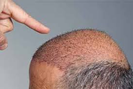 neograft recovery timeline miami neograft hair transplant recovery jolie plastic surgery