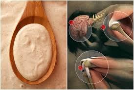 gout ranking remedy for swollen gout gout symptoms swollen