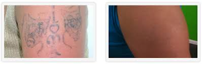 tattoo removal after u0026 before gallery unwanted tattoos uk