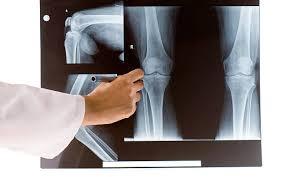 Pernas Tortas Raquitismo Criança E Pernas Tortas Causas E Tratamento Ortopedista Em Sergipe Dr