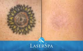 laser tattoo removal laserspa of tampa bay