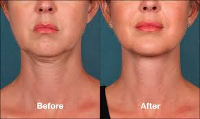 how to make a double chin look less noticable eith hair st louis kybella double chin treatment st louis lipo center