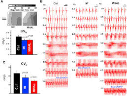increased afterload following myocardial infarction promotes