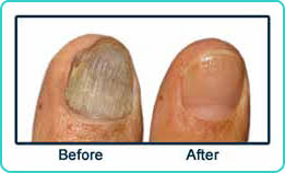 fungal nail laser treatment podiatry associates p c