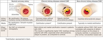 diagnosis and management of atherosclerotic cardiovascular disease