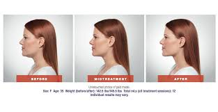 flattering hairstyles for double chins or sagging necks double chin treatment radiance medspa wheaton