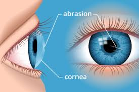 Is There A Cure To Color Blindness Corneal Abrasion How To Treat A Scratched Eye