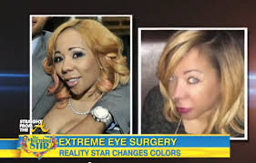 tiny color tiny harris eye color surgery straightfromthea 5