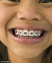 Braces Meme Girl - fake braces trend is a new status symbol for asian teenagers but