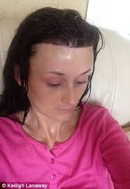 how to manage a ver low hairline kent woman bullied for large forehead got 6 500 surgery daily