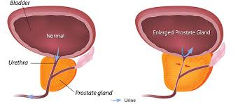 the triple use of cialis in bph patients ed bph and hypertension