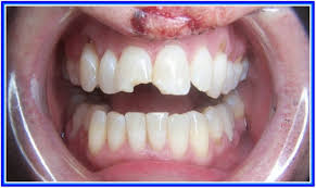 Teeth Whitening Colorado Springs 30 Pictures Of How Much For Teeth Whitening Oral U0026 Dental References