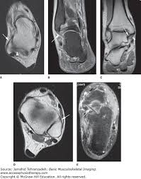 Ankle Ligament Tear Mri Ankle Mri Basic Musculoskeletal Imaging Accessphysiotherapy