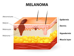 skin cancer essay Annual estimated treatment costs for skin cancer and other cancer sites in the United States