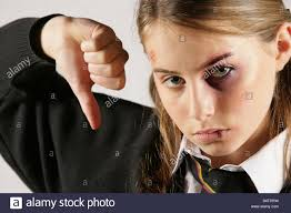 school for special effects makeup school girl with a black eye and injuries posed by model