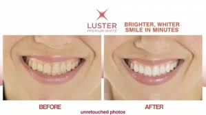 luster pro light teeth whitening system reviews boots teeth whitening kit could give you celebrity smile daily