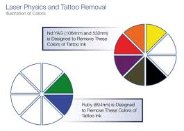 houston laser tattoo removal laser removal houston about tattoo