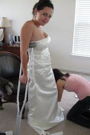 wedding dress cast casts lifestyle what is orthopedic