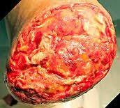 integra bilayer matrix wound dressing trans metatarsal amputation