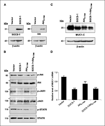 muc1 oncoprotein promotes refractoriness to chemotherapy in