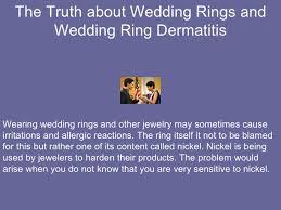 wedding ring dermatitis the about wedding rings and wedding ring dermatitis 2 728 jpg cb 1245570726