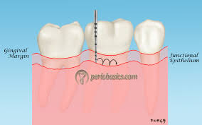 periodontal history taking including patient interview and