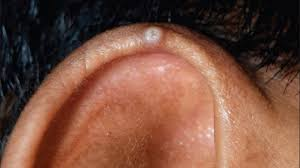 cancer of the ear cartilage chondrodermatitis nodularis helicis symptoms and more