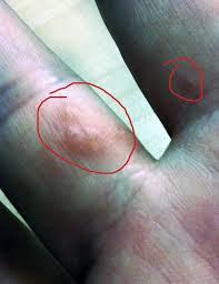itchy bumps on hands that spread tiny itchy bumps on hands pictures photos