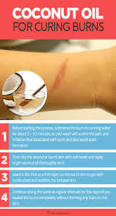 Treatment For Rug Burn Coconut Oil For Curing Burns