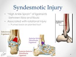 High Ankle Sprain Anatomy Foot U0026 Ankle Injuries Kylee Phillips Md Mba Clinical Instructor