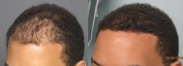 how thick is 1000 hair graft fue hair transplant los angeles dr sean behnam