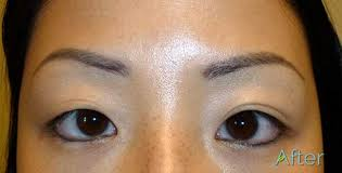 eyebrow tattoo removal before and after tattoo removal best methods