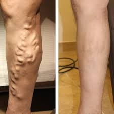 treatment options for leg veins reading berkshire chiltern